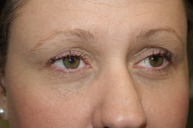 Eyebrows - Block & Feather Touch by Lyn Quade, Cosmetic & Medical Tattoo, Permanent Makeup Australia